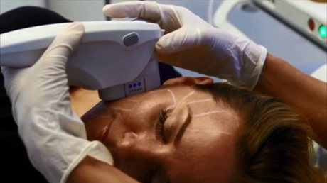 Procedure Up-Close Ultherapy Skin Lifting Treatment